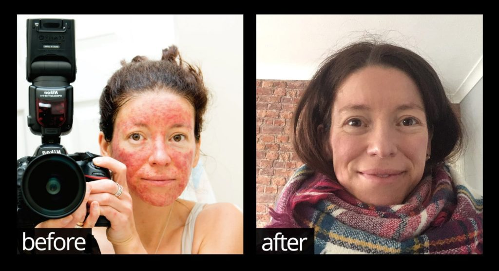 The real reason that nothing has ever worked to resolve your acne, eczema, psoriasis or rosacea – until now!